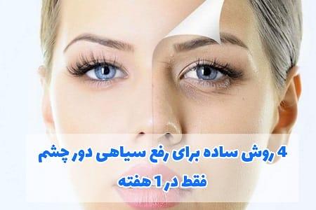 4 دستورالعمل معجزه انگیز{تضمینی} برای رفع سیاهی دور چشم فقط در 1 هفته